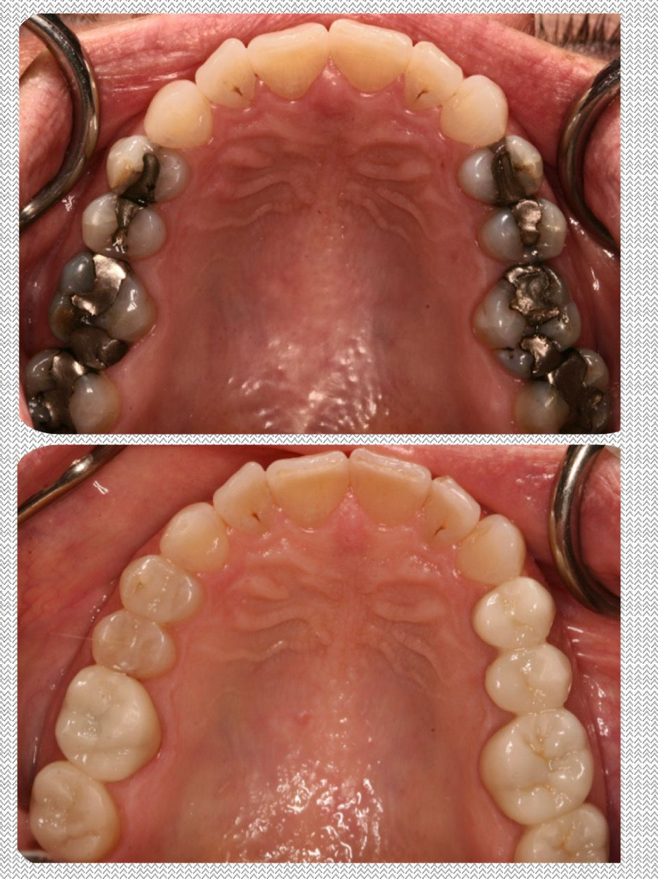 crowns and bridges before and after