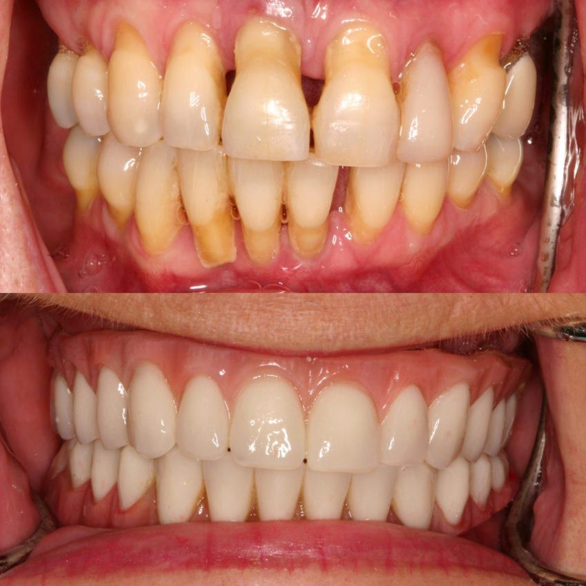 Before and after dental treatment