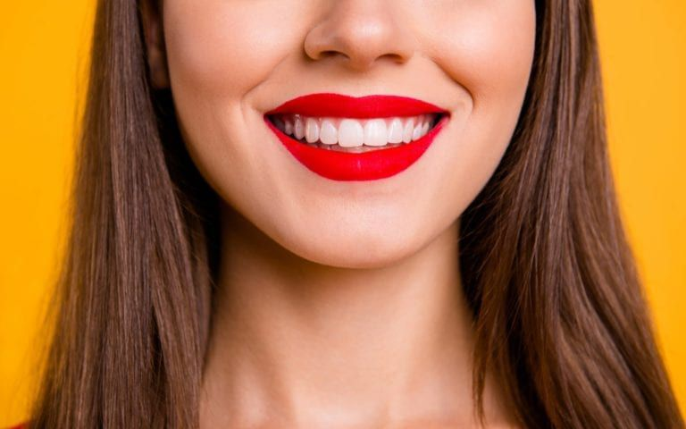 Woman with contoured gums