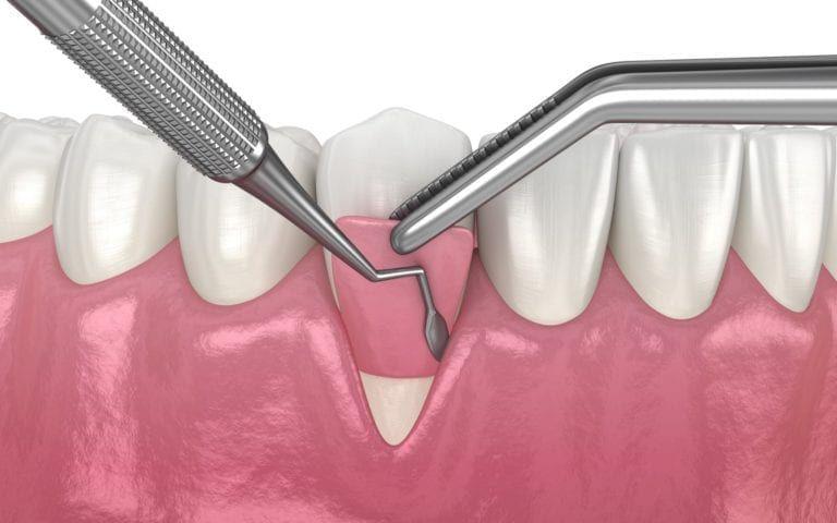 Rendering of Gum Grafting Procedure