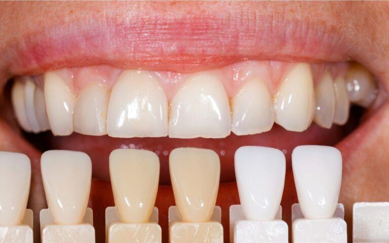 Selecting Tooth Shade