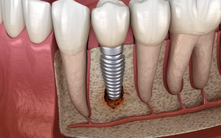 Representation of Peri-Implantitis
